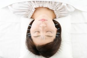 【あさイチ】つまようじ美容鍼のやり方。顔のたるみやリフトアップにおすすめ。